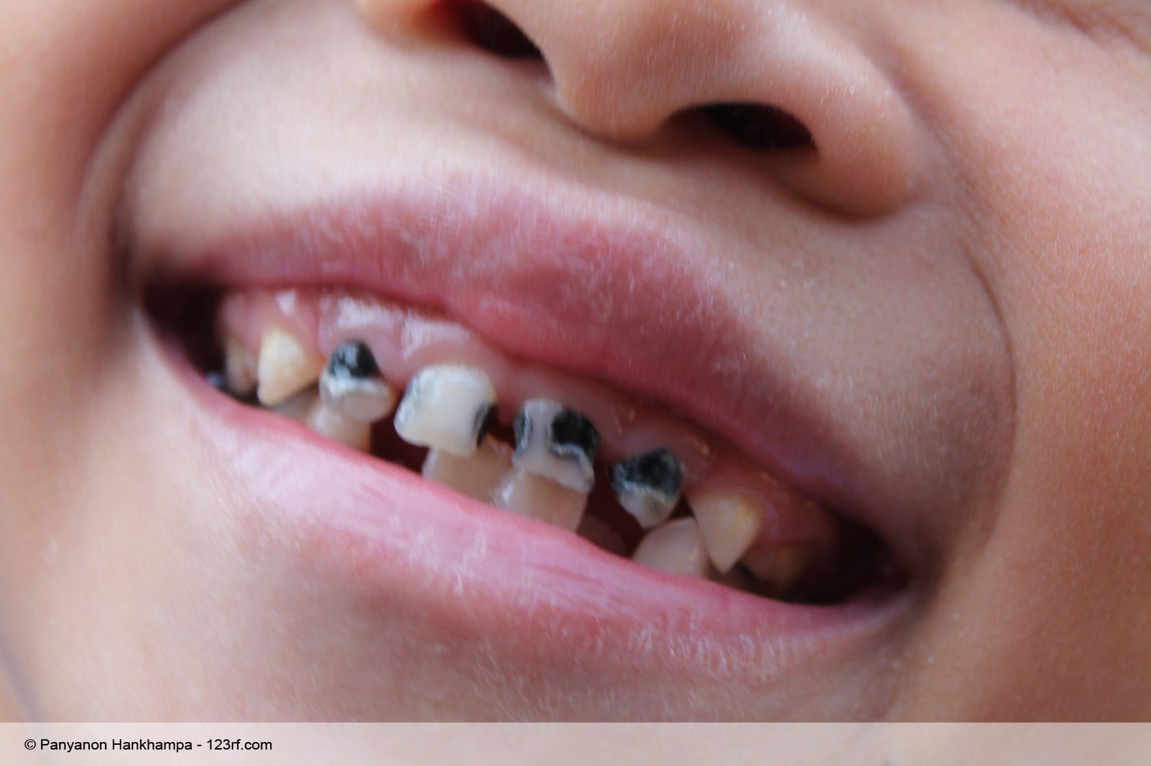 Groß Zähne Anatomie Für Kinder Fotos - Menschliche Anatomie Bilder ...
