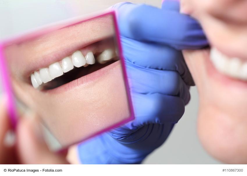 Patientin mit Zahnlcke im Spiegel beim Zahnarzt