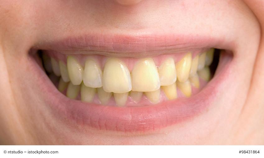 Gelbe Zähne Durch Kaffee