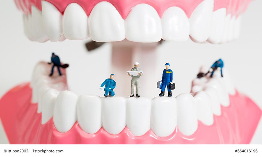 information-mundgesundheit-parodontitis-zahnfleisch-2