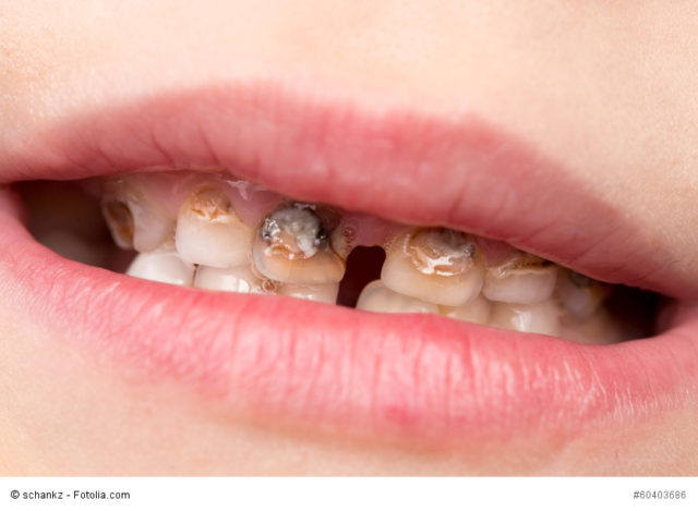 Immer wehr kleine Kinder leiden unter Karies und Zahnschmerzen