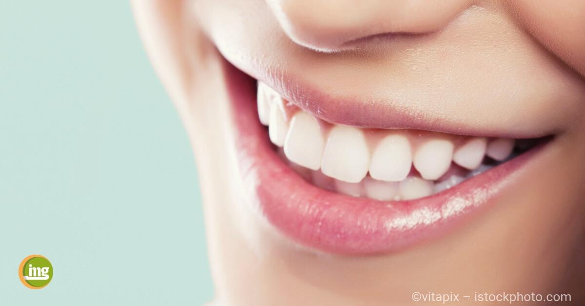 Junge Frau lächelt mit weißen Zähnen nach dem Bleaching beim Zahnarzt.