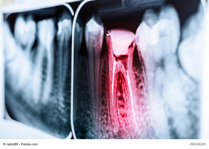 RÖntgenbild eines schmerzenden und kranken Zahns