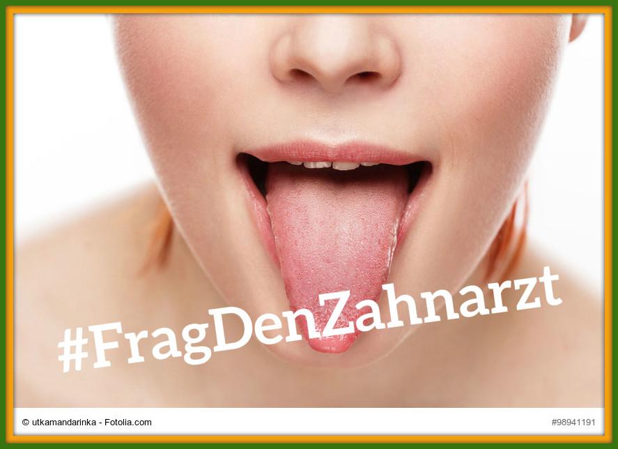 #FragDenZahnarzt ... was die Zunge über unsere Gesundheit sagt!