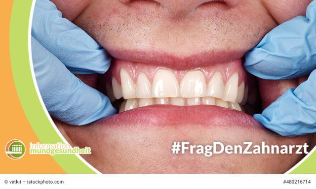 wie wird die parodontitis behandelt? frag den zahnarzt auf information mundgesundheit