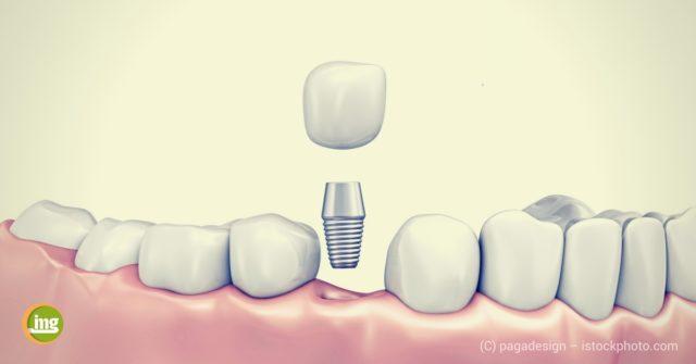 Zahnlücke wir mit einem einzelnen Implantat und einer Krone geschlossen