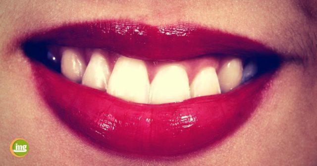 Rote Lippen umrahmen schöne weiße Zähne. Zähne bleichen mit Backpulver oder Zitrone ist keine Alternative zu einem professionellen Bleaching in der Zahnarztpraxis, rät information mundgesundheit.