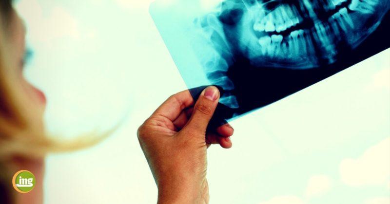 information mundgesundheit klärt auf: Wenn der Kieferknochen nicht genügend Substanz für die künstliche Zahnwurzel bietet, muss nachgeholfen werden. Mit einem Knochenaufbau schaffen erfahrene Zahnärzte, Implantologen und Oralchirurgen die Voraussetzungen für eine Implantation.