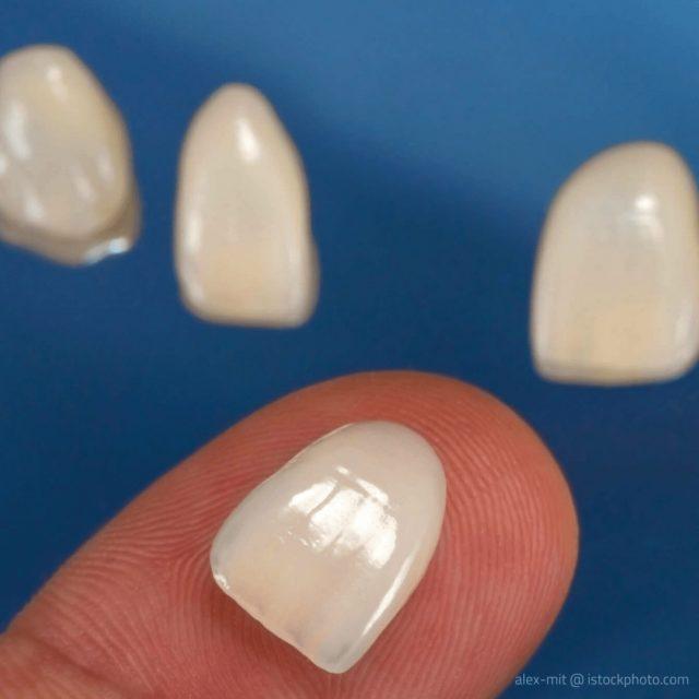 Information Mundgesundheit klärt auf: Veneers kommen zum Einsatz, um verfärbte Zähne, Zahnfehlstellungen und kleine Schäden zu verdecken..
