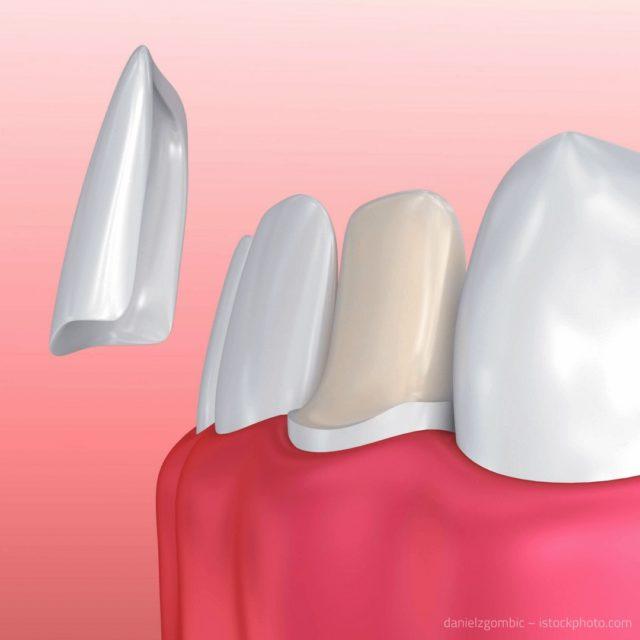 Information Mundgesundheit klärt auf: Veneers werden mit einem speziellen Klebstoff auf den natürlichen Zähnen befestigt.