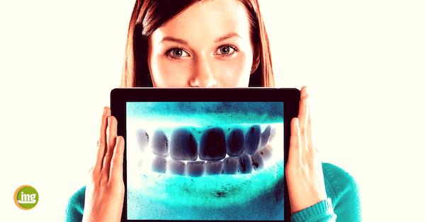 Junge Frau mit Röntgenbild zum Thema - wie hart ist unser Zahnschmelz? Mehr auf Information minus mundgesundheit punkt de