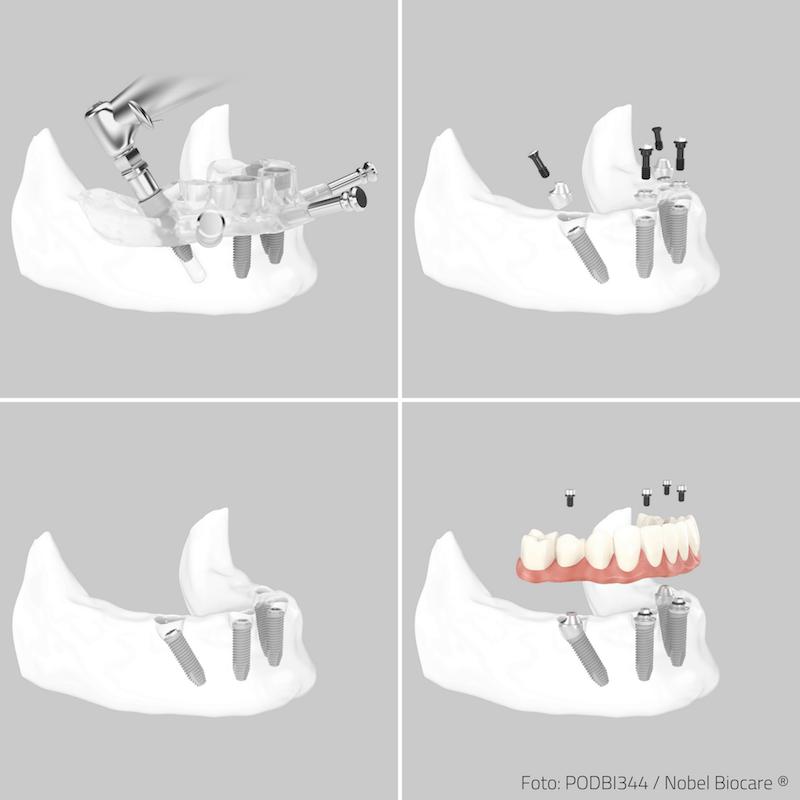 Ablauf einer Behandlung für zahnlose Patienten mit der All on 4 Methode für feste Zähne an einem Tag.