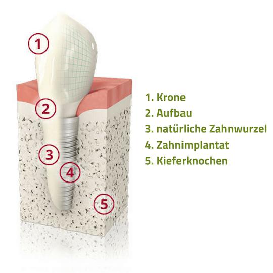Schematische Darstellung: Aufbau eines Zahnimplantates im Vergleich zum natürlichen Zahn.