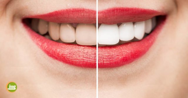 Was geschieht beim Bleaching mit unseren Zähnen? Warum werden sie heller und warum sollte nur in der Zahnarztpraxis gebleicht werden?