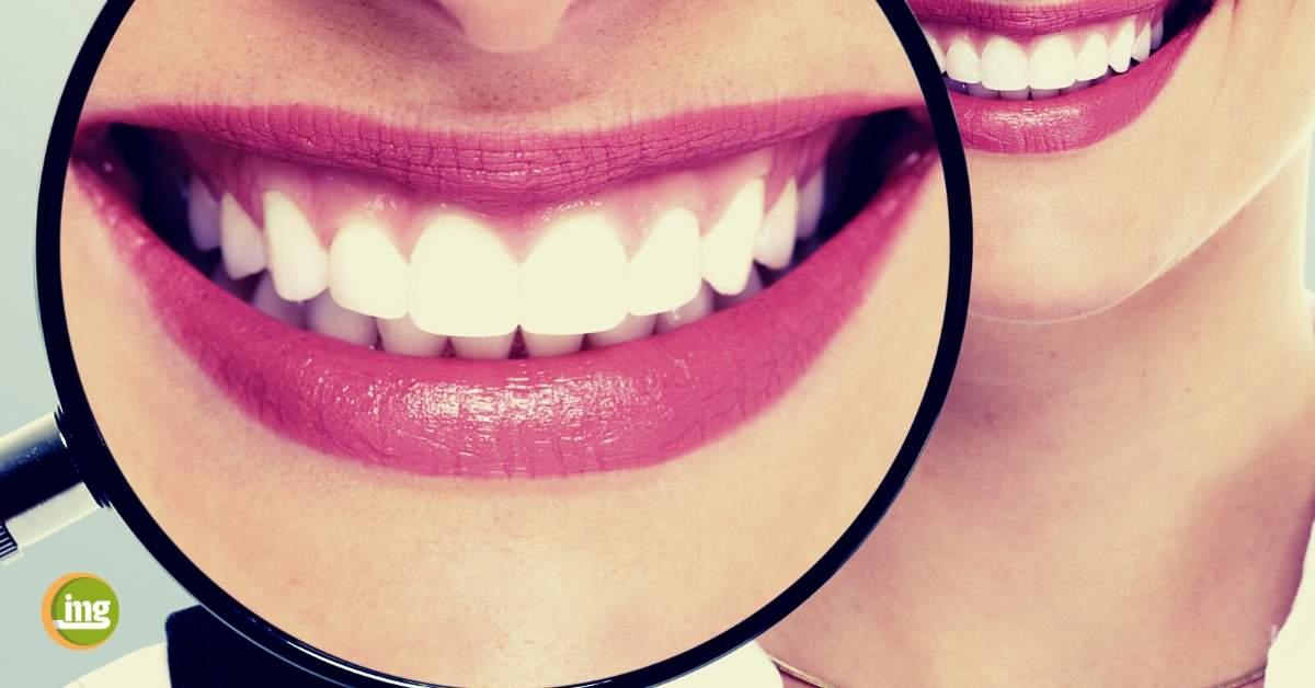 """Weißmacher-Zahncremes enthalten in der Regel viele, grobe Putzkörper. Die entfernen Plaque von den Zähnen und """"reiben"""" die Verfärbungen oberflächlich vom Zahnschmelz."""